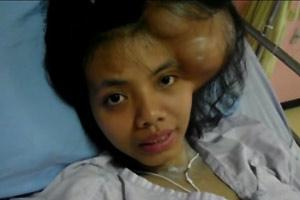 Pretty Young Girl with Huge Tumor