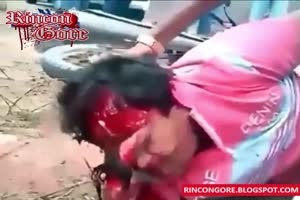 Biker with torn scalp
