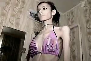 Anorexic Girl Starving Herself