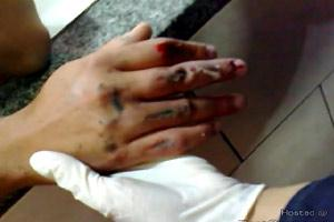 Hand Caught In Pastry Machine