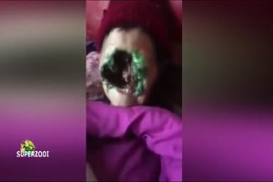 Woman Loses Face to Flesh Eating Disease